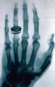 Una radiografia eseguita nel 1896 da Röntgen alla mano della moglie del fisiologo e anatomista Albert von Kölliker (credit: Pubblico Dominio)